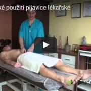 Profylaktické použitie pijavice lekárskej